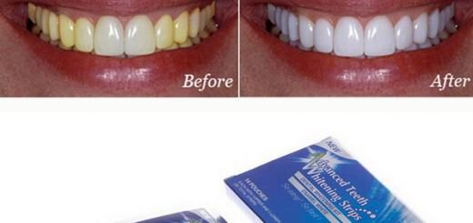 Отбеливающие полосик для зубов